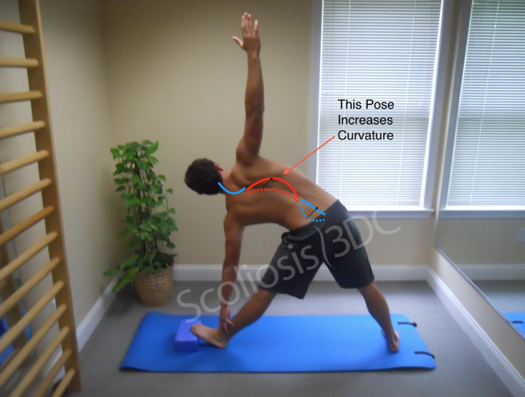 Yoga And Scoliosis Are Yoga Exercises Good For Scoliosis
