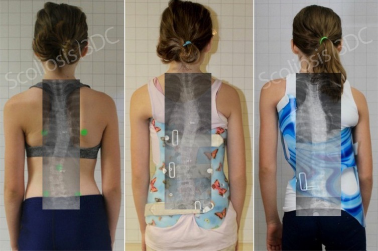 Back Brace for Scoliosis | Scoliosis Brace | Best Scoliosis